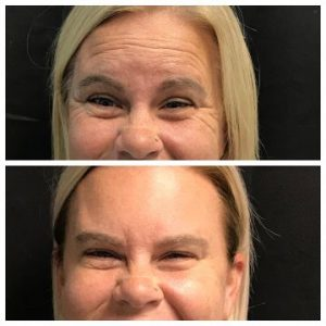 dysport crows feet and forehead treatment before and after